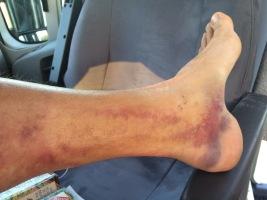 Alex Fußverletzung