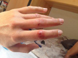 Verletzung durch Steinschleuder